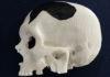 Cranio realizzato con la stampa 3D