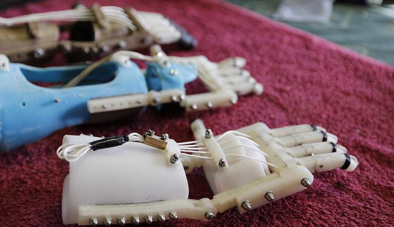Protesi realizzate con la stampa 3D