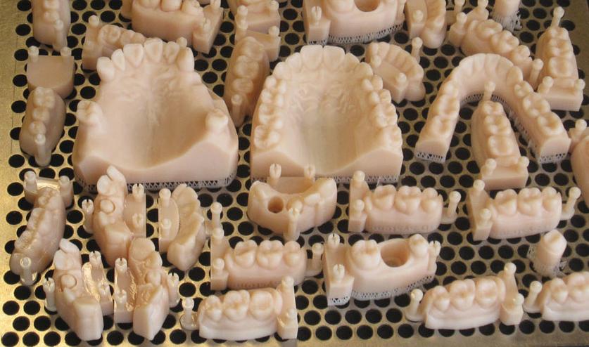 Prototipi di protesi dentali realizzati con la stampa 3D