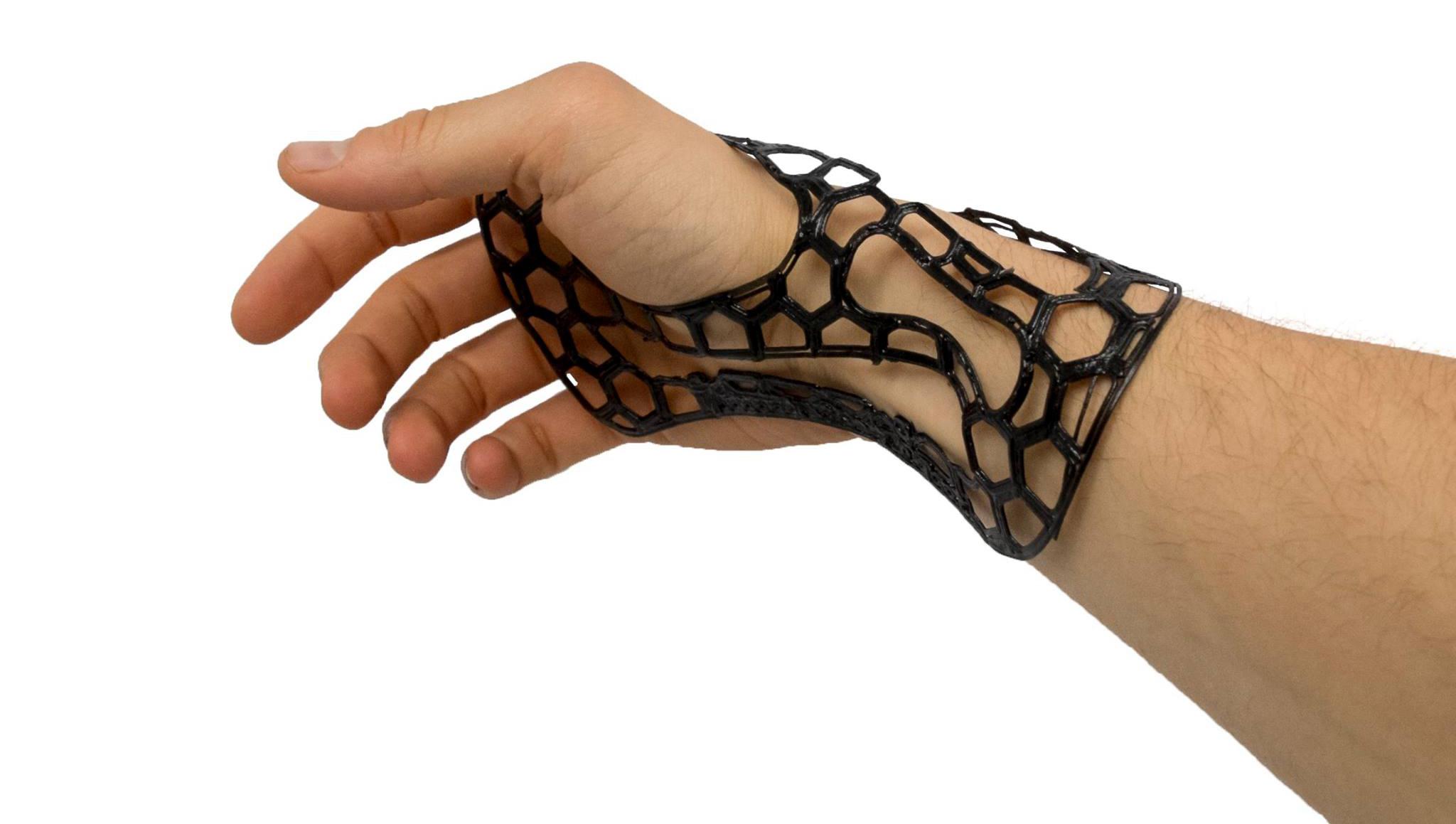Tutore per polso realizzato con la stampa 3D
